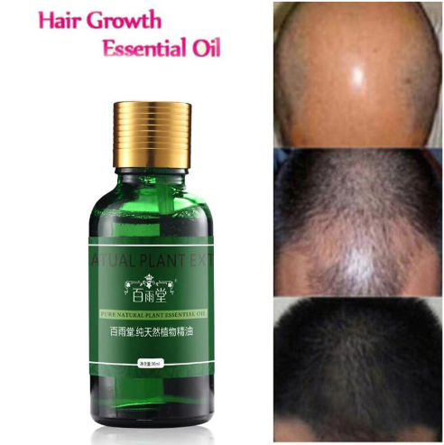 Hair Care Hair Growth Essential Oils Essence Original Authentic 100% Hair Loss Liquid