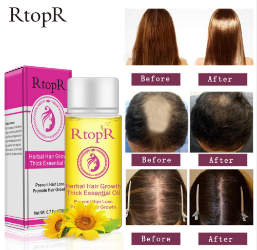 RtopR 20ml Hair Growth Anti Hair Loss Liquid Promote Thick Fast Hair Growth